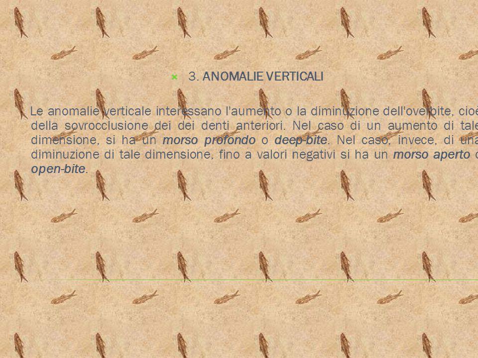 3. ANOMALIE VERTICALI