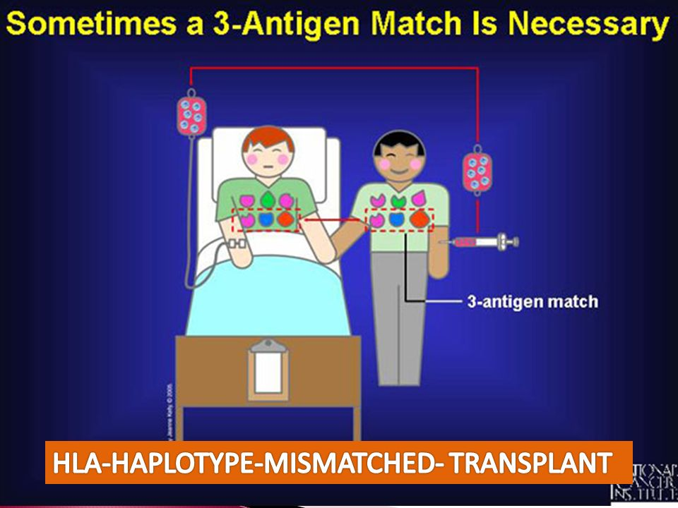 HLA-HAPLOTYPE-MISMATCHED- TRANSPLANT