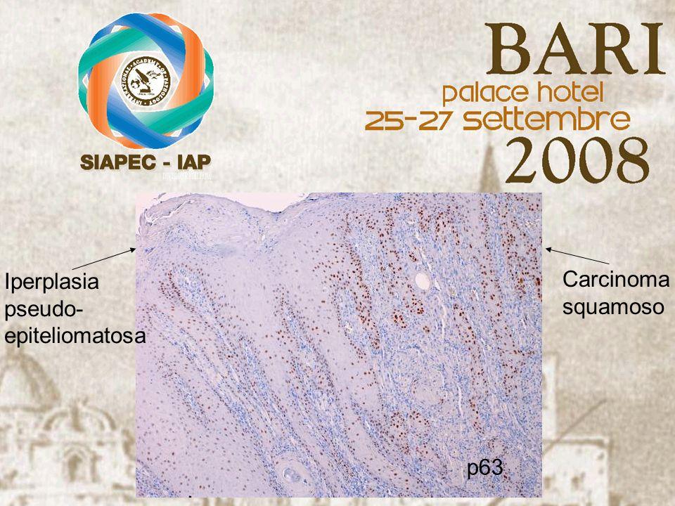 Iperplasia pseudo- epiteliomatosa Carcinoma squamoso p63