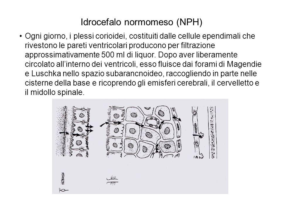 Idrocefalo normomeso (NPH)
