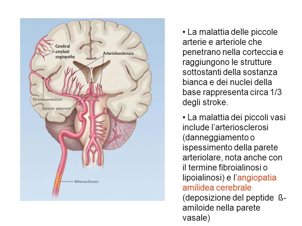 La malattia delle piccole arterie e arteriole che penetrano nella corteccia e raggiungono le strutture sottostanti della sostanza bianca e dei nuclei della base rappresenta circa 1/3 degli stroke.