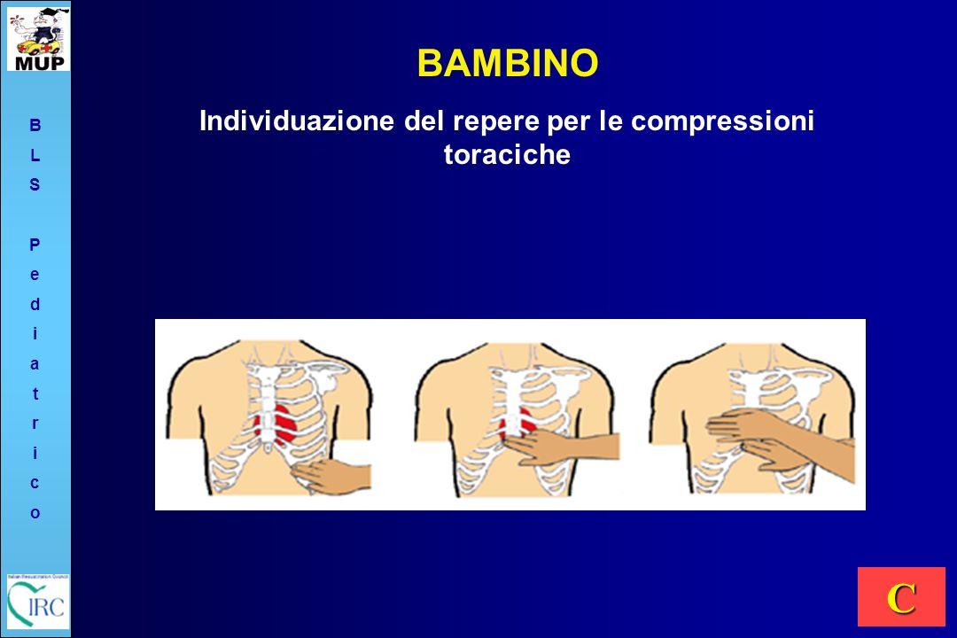 Individuazione del repere per le compressioni toraciche