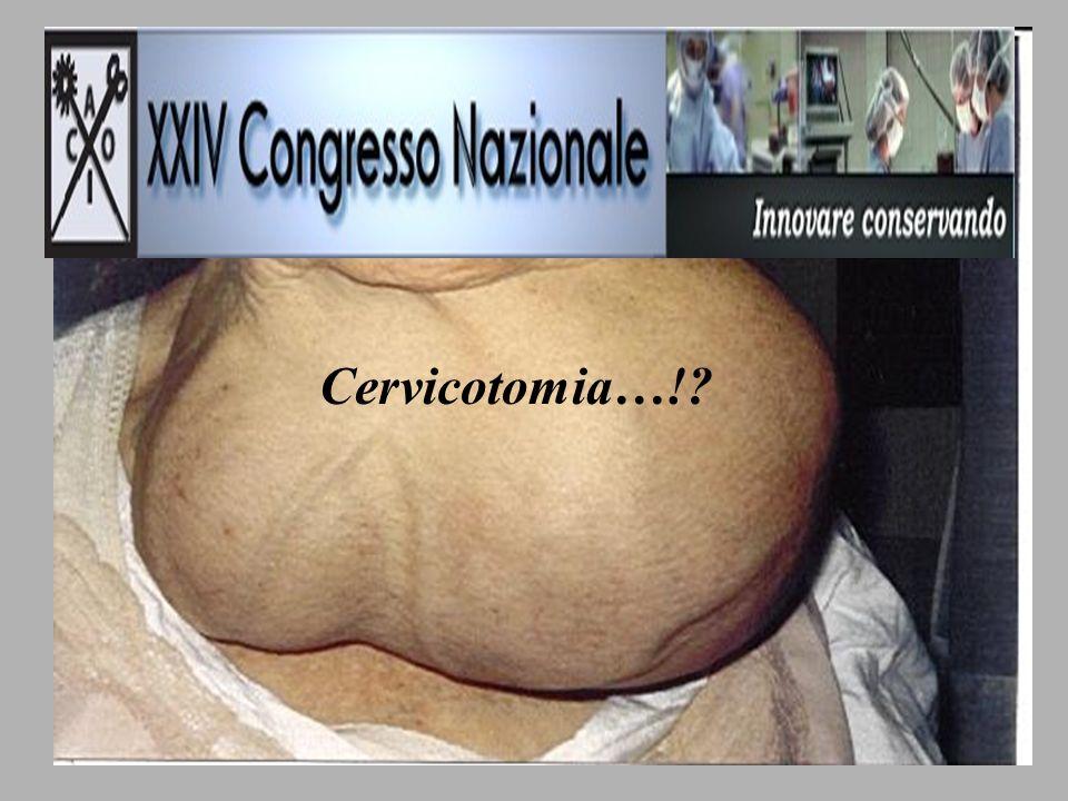 Cervicotomia…!