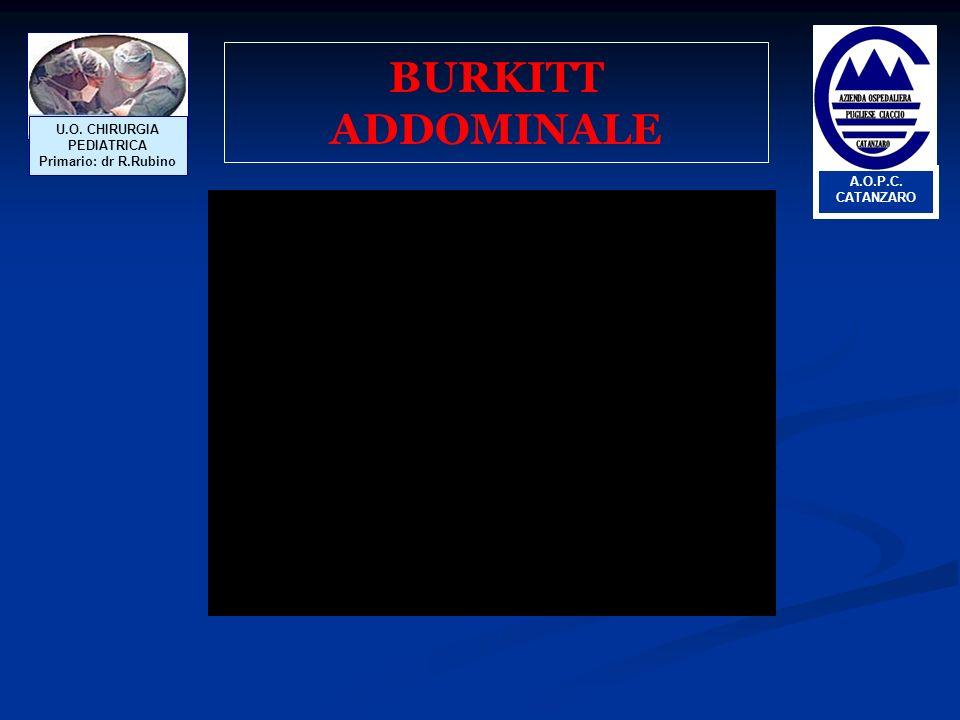 BURKITT ADDOMINALE U.O. CHIRURGIA PEDIATRICA Primario: dr R.Rubino