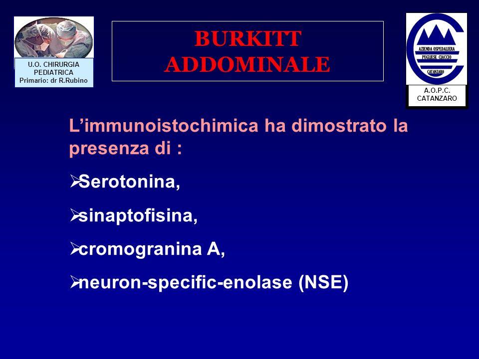 BURKITT ADDOMINALE L'immunoistochimica ha dimostrato la presenza di :