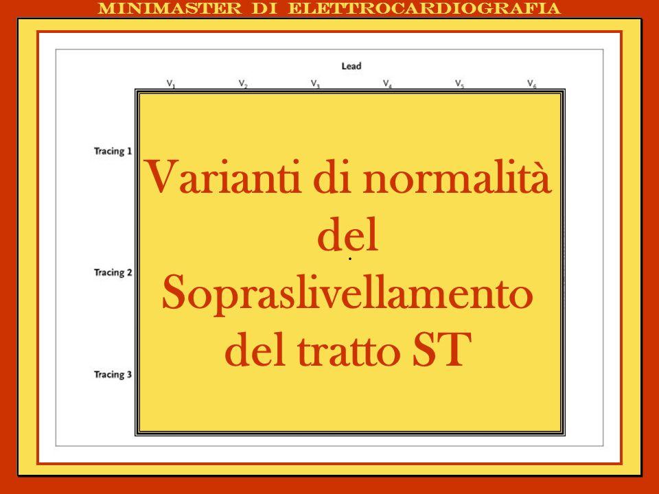 Varianti di normalità del Sopraslivellamento del tratto ST