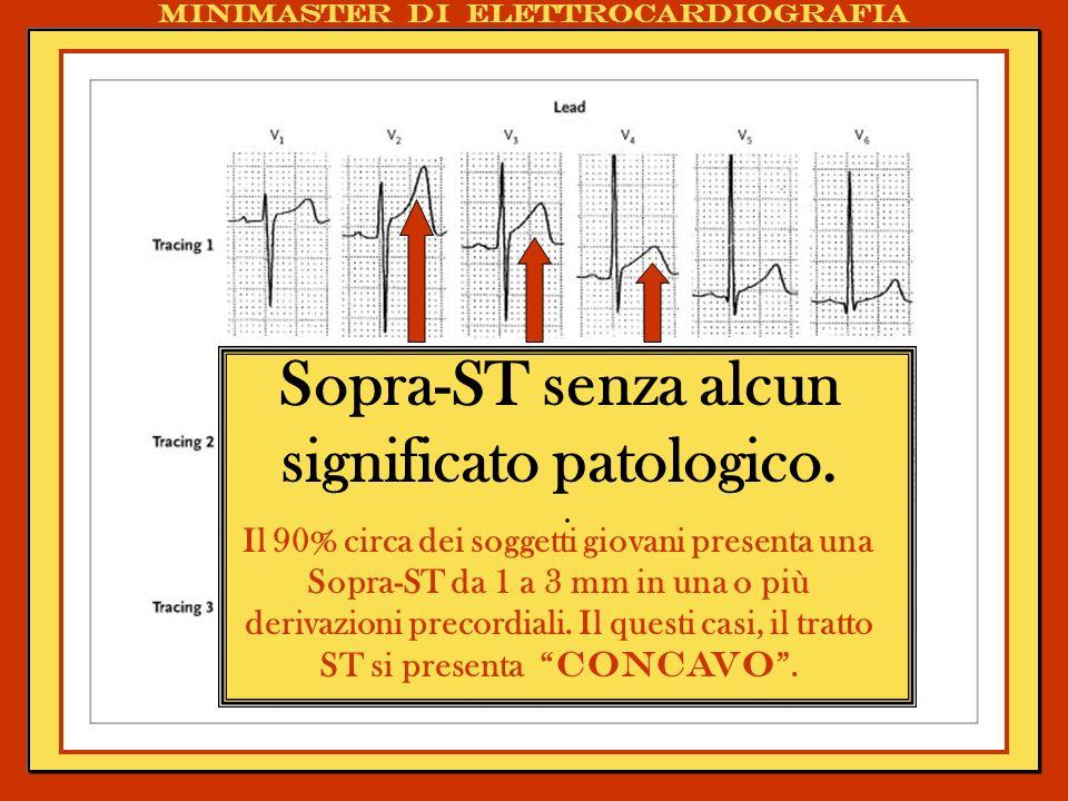Sopra-ST senza alcun significato patologico.