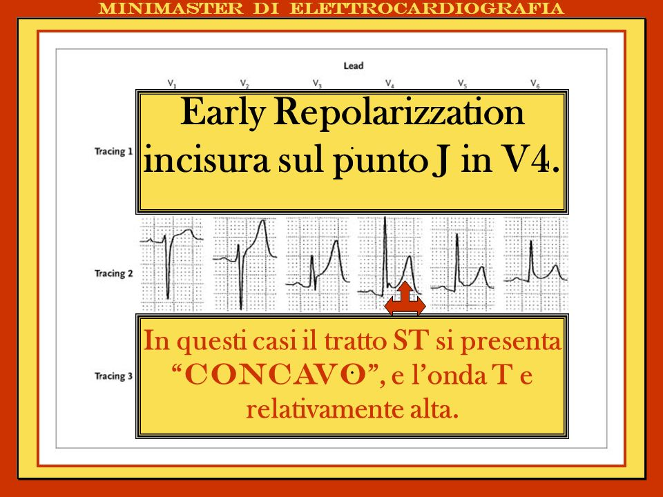 Early Repolarizzation incisura sul punto J in V4.