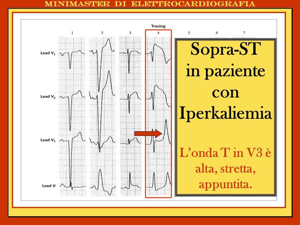 Sopra-ST in paziente con Iperkaliemia