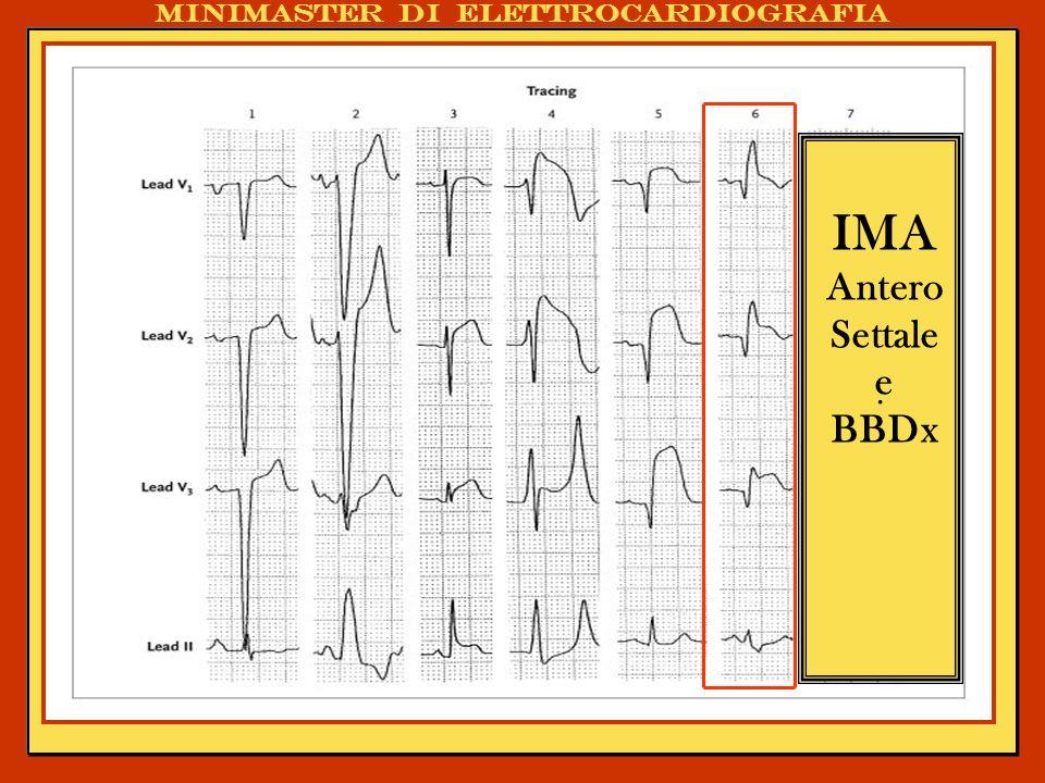 Minimaster di elettrocardiografia