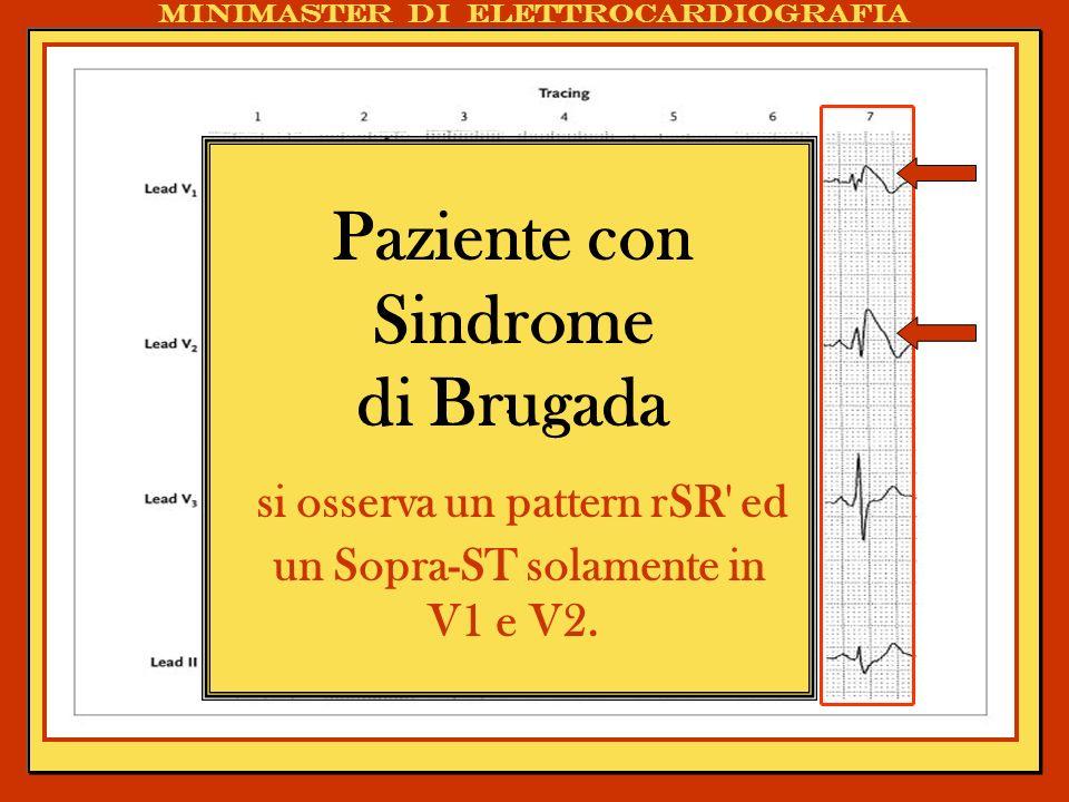 si osserva un pattern rSR ed un Sopra-ST solamente in V1 e V2.