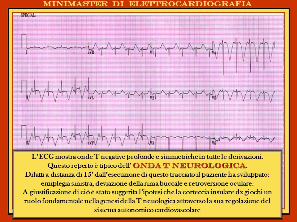 Questo reperto è tipico dell' onda T neurologica.
