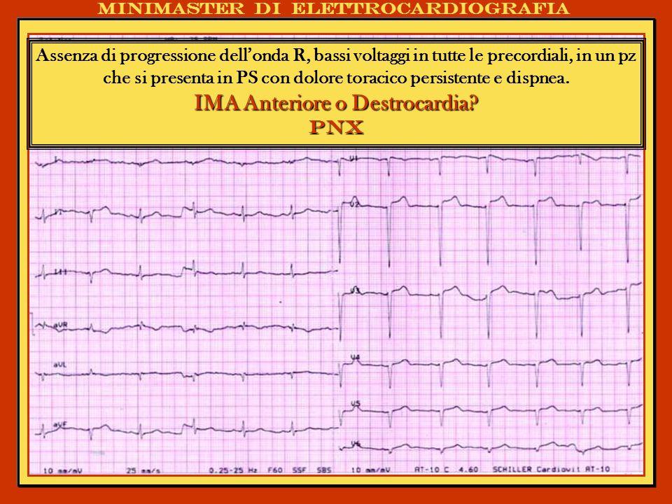 IMA Anteriore o Destrocardia