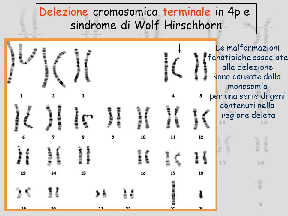 Delezione cromosomica terminale in 4p e sindrome di Wolf-Hirschhorn