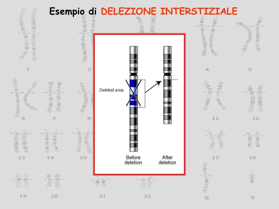 Esempio di DELEZIONE INTERSTIZIALE