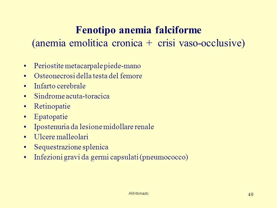 Fenotipo anemia falciforme (anemia emolitica cronica + crisi vaso-occlusive)