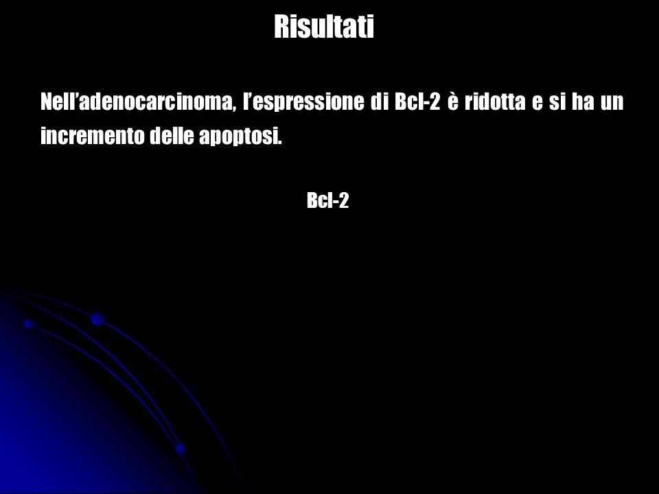 Risultati Nell'adenocarcinoma, l'espressione di Bcl-2 è ridotta e si ha un incremento delle apoptosi.