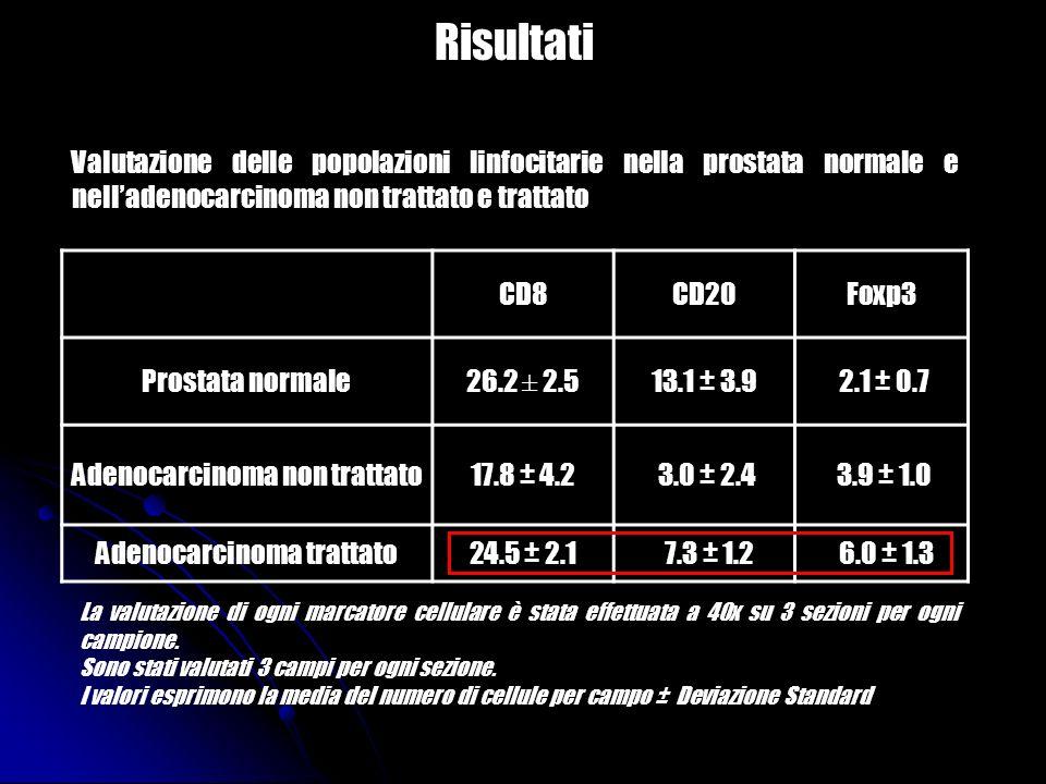 Risultati Valutazione delle popolazioni linfocitarie nella prostata normale e nell'adenocarcinoma non trattato e trattato.