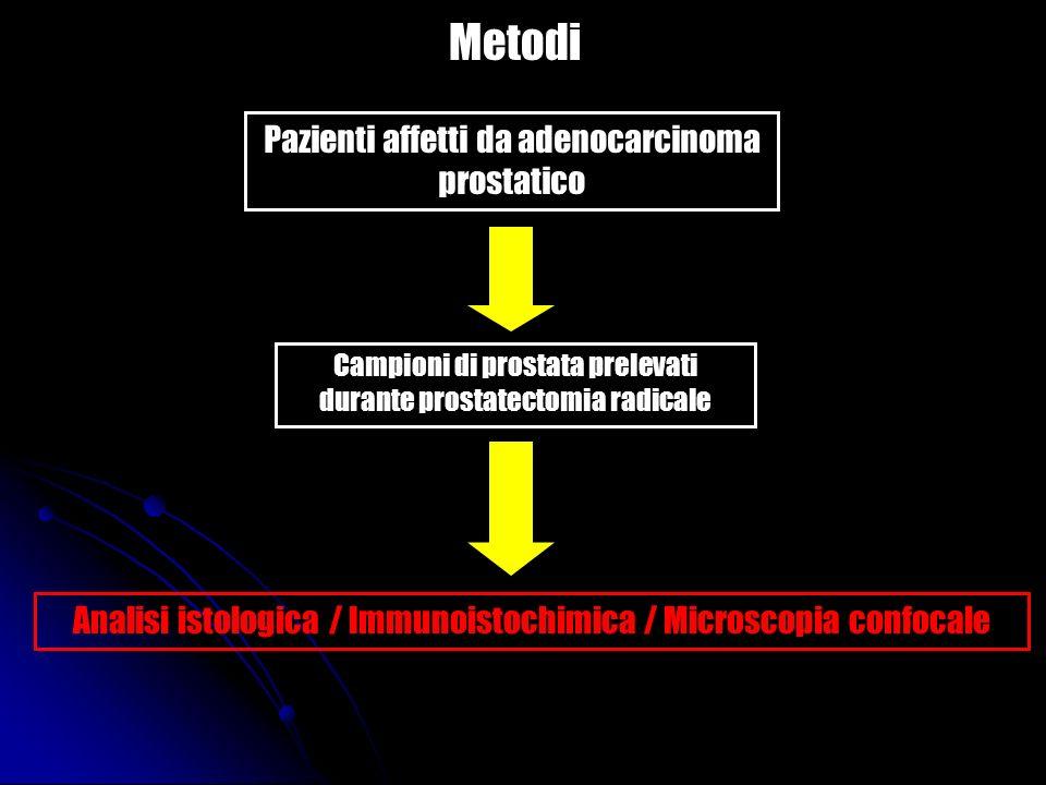 Metodi Pazienti affetti da adenocarcinoma prostatico