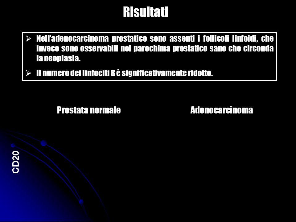 Risultati Prostata normale Adenocarcinoma CD20
