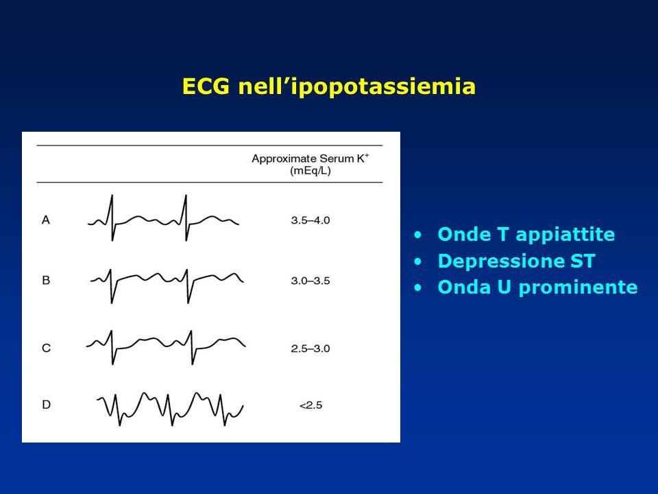 ECG nell'ipopotassiemia