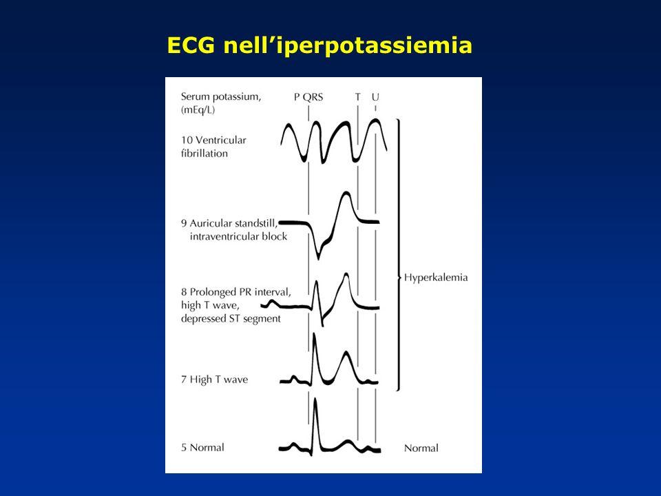 ECG nell'iperpotassiemia