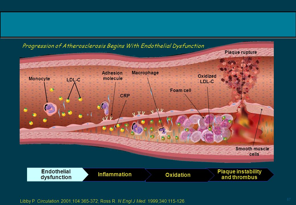 Progression of Atherosclerosis Begins With Endothelial Dysfunction