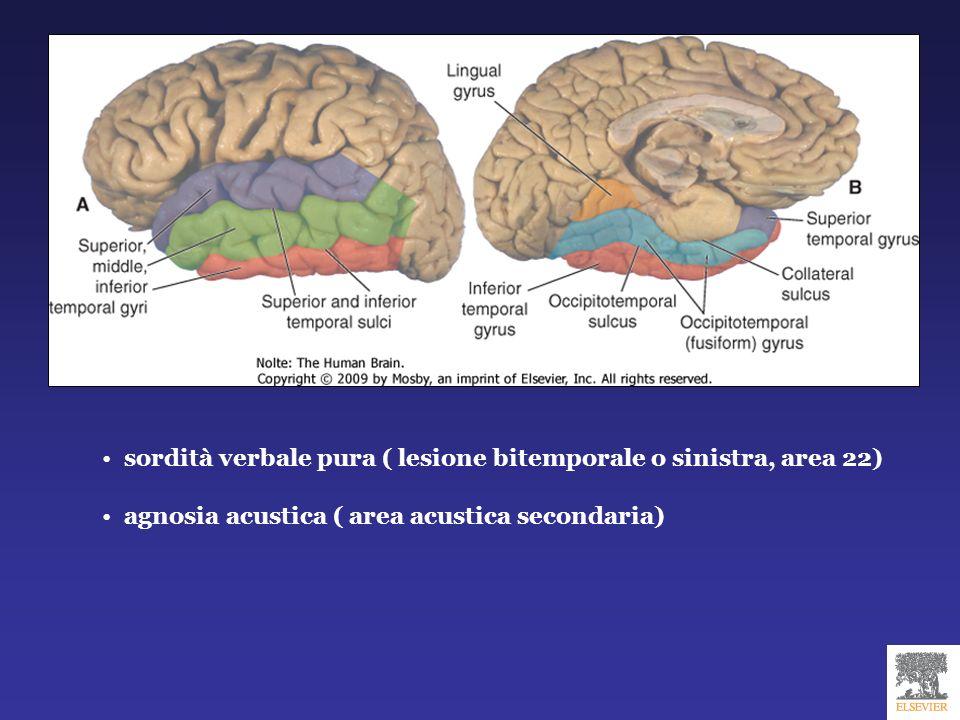 sordità verbale pura ( lesione bitemporale o sinistra, area 22)