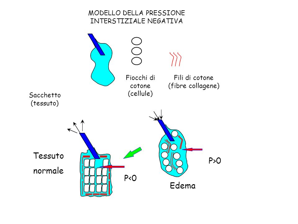 Edema P>0 Tessuto normale P<0