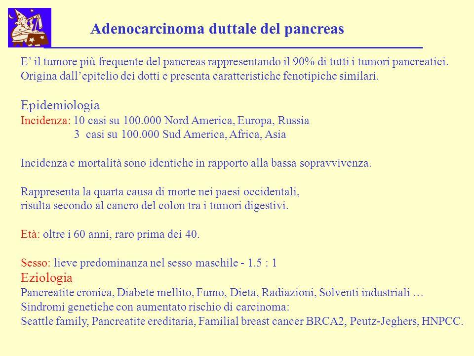 Adenocarcinoma duttale del pancreas
