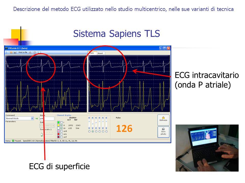 Sistema Sapiens TLS ECG intracavitario (onda P atriale)