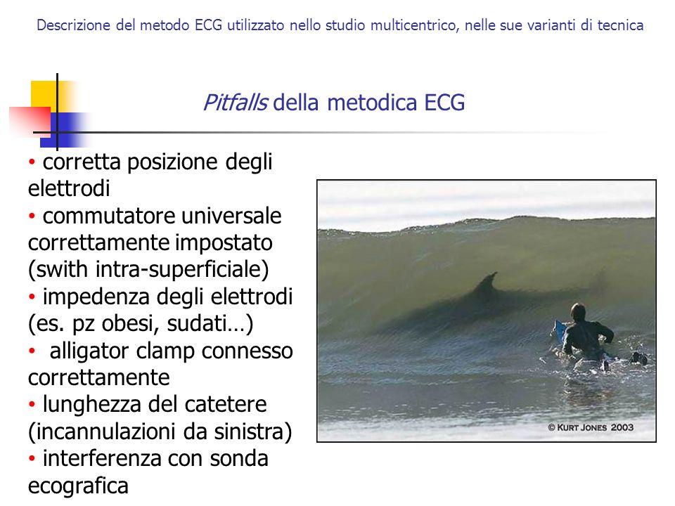Pitfalls della metodica ECG