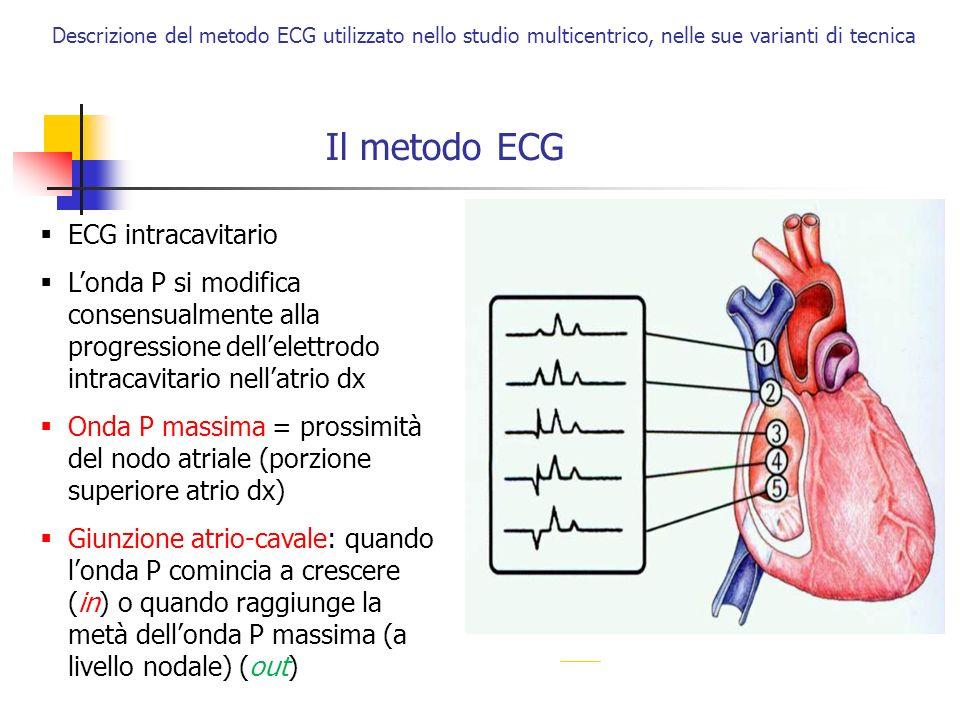Il metodo ECG ECG intracavitario