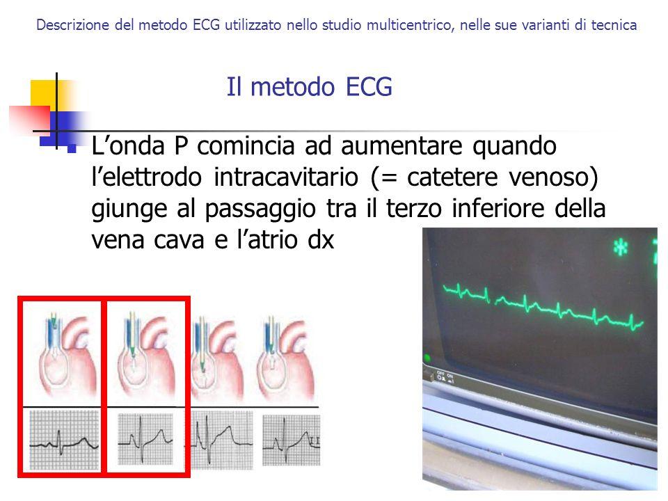 Descrizione del metodo ECG utilizzato nello studio multicentrico, nelle sue varianti di tecnica