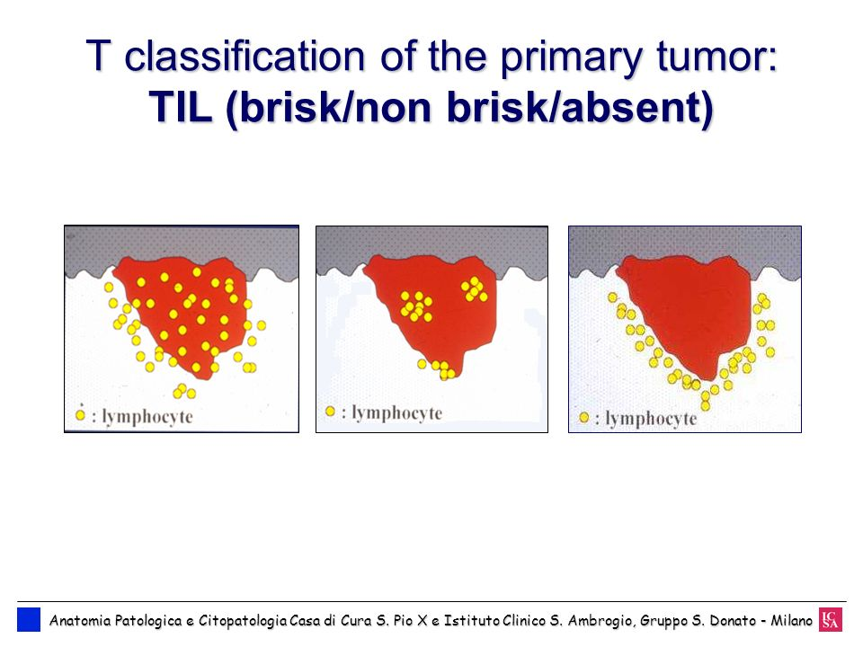 T classification of the primary tumor: TIL (brisk/non brisk/absent)