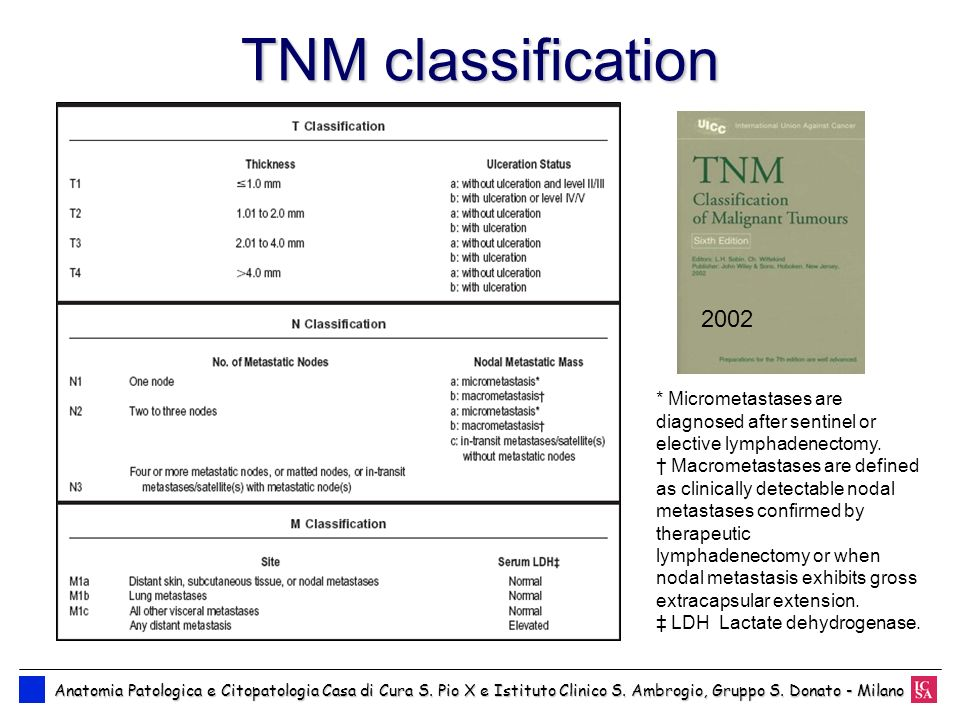 TNM classification2002. * Micrometastases are diagnosed after sentinel or elective lymphadenectomy.