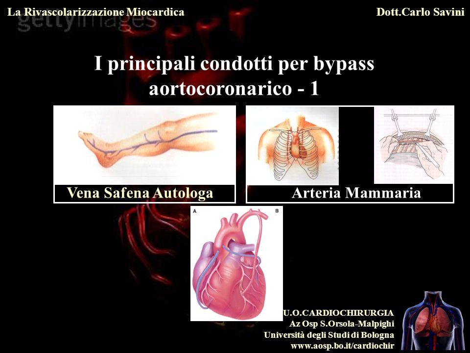I principali condotti per bypass aortocoronarico - 1