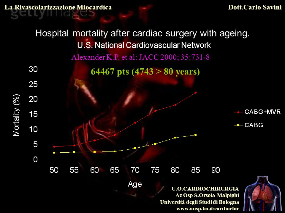 Hospital mortality after cardiac surgery with ageing. U. S