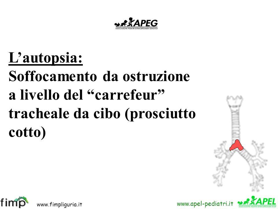 L'autopsia: Soffocamento da ostruzione. a livello del carrefeur tracheale da cibo (prosciutto.