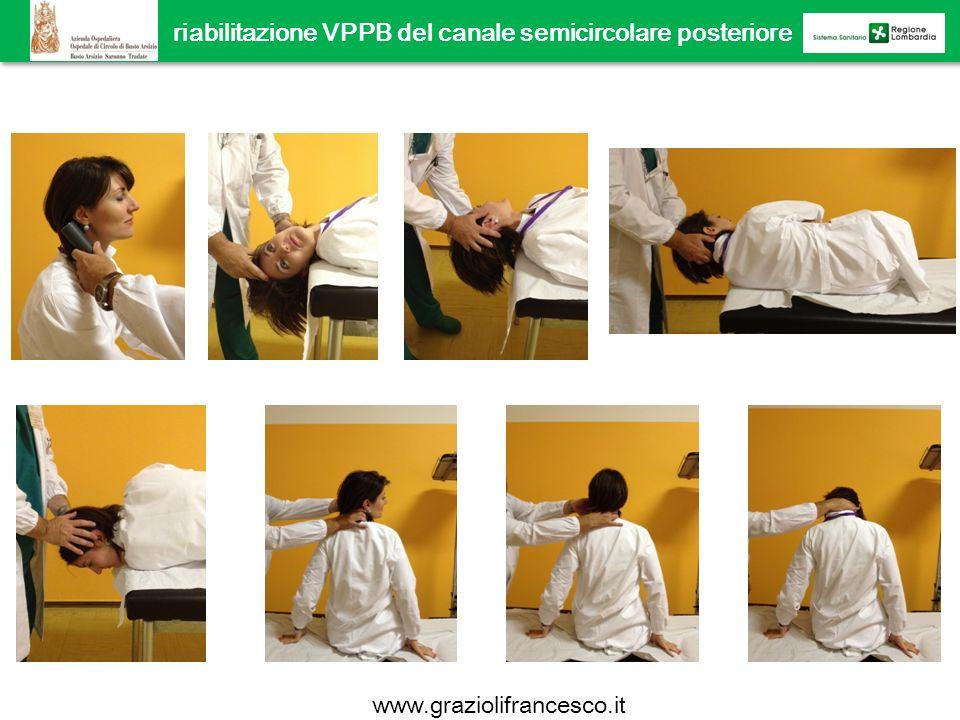 riabilitazione VPPB del canale semicircolare posteriore