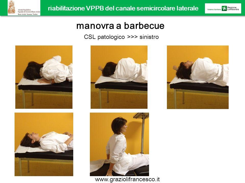 riabilitazione VPPB del canale semicircolare laterale