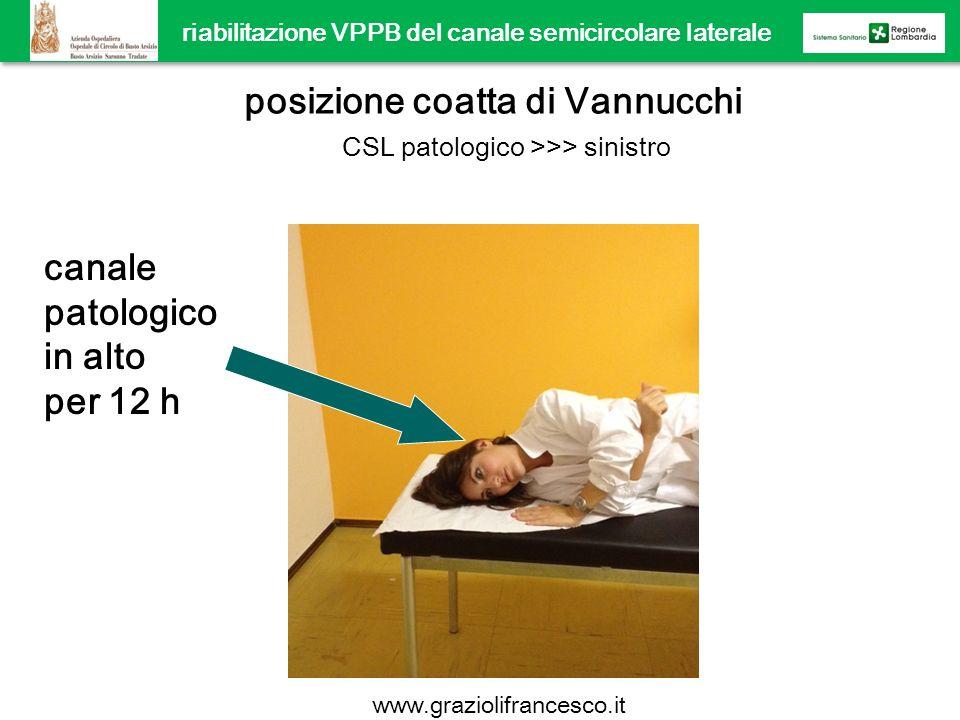 posizione coatta di Vannucchi