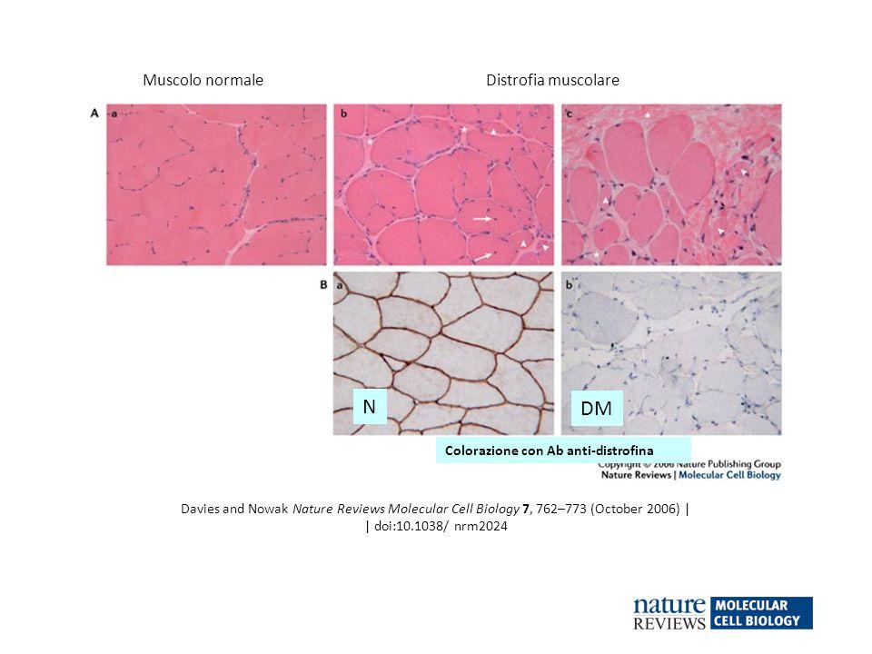 N DM Muscolo normale Distrofia muscolare