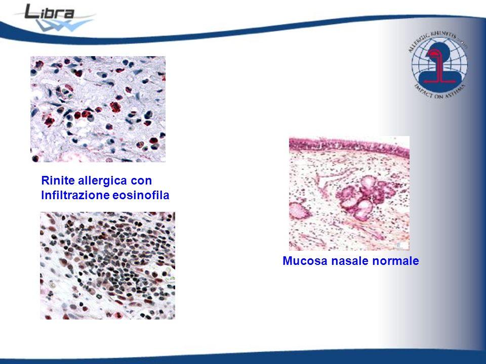 Rinite allergica con Infiltrazione eosinofila Mucosa nasale normale