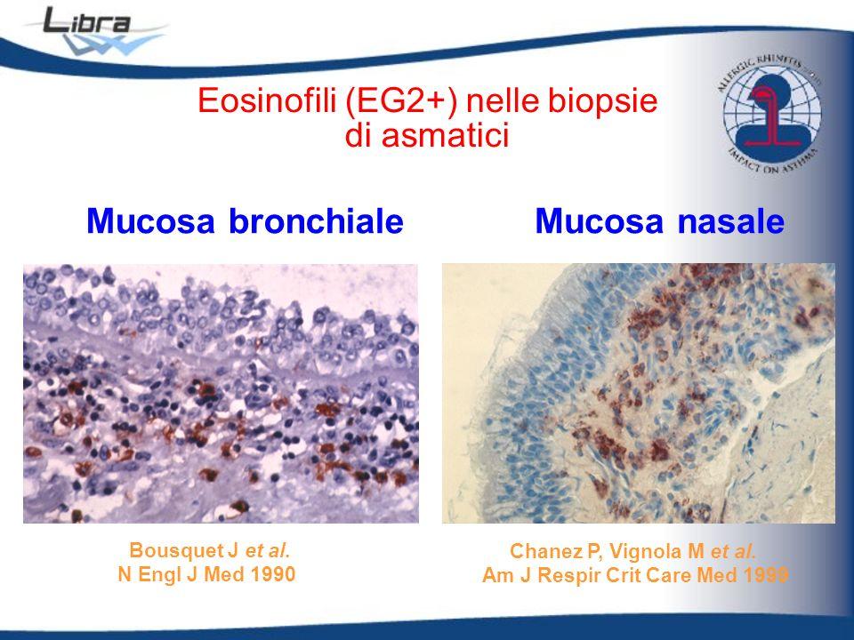 Eosinofili (EG2+) nelle biopsie di asmatici