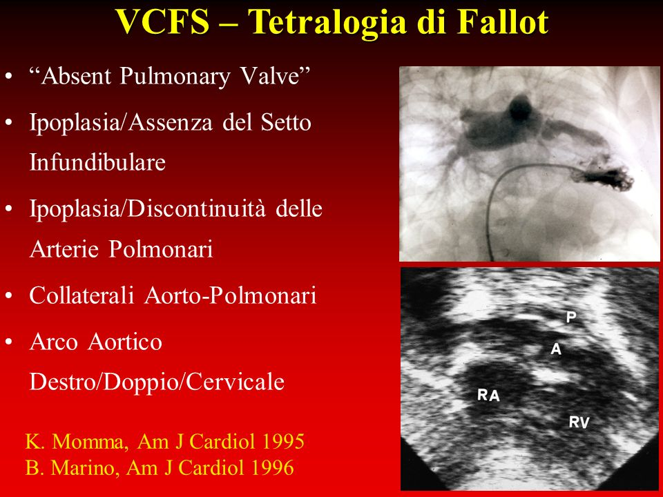 VCFS – Tetralogia di Fallot