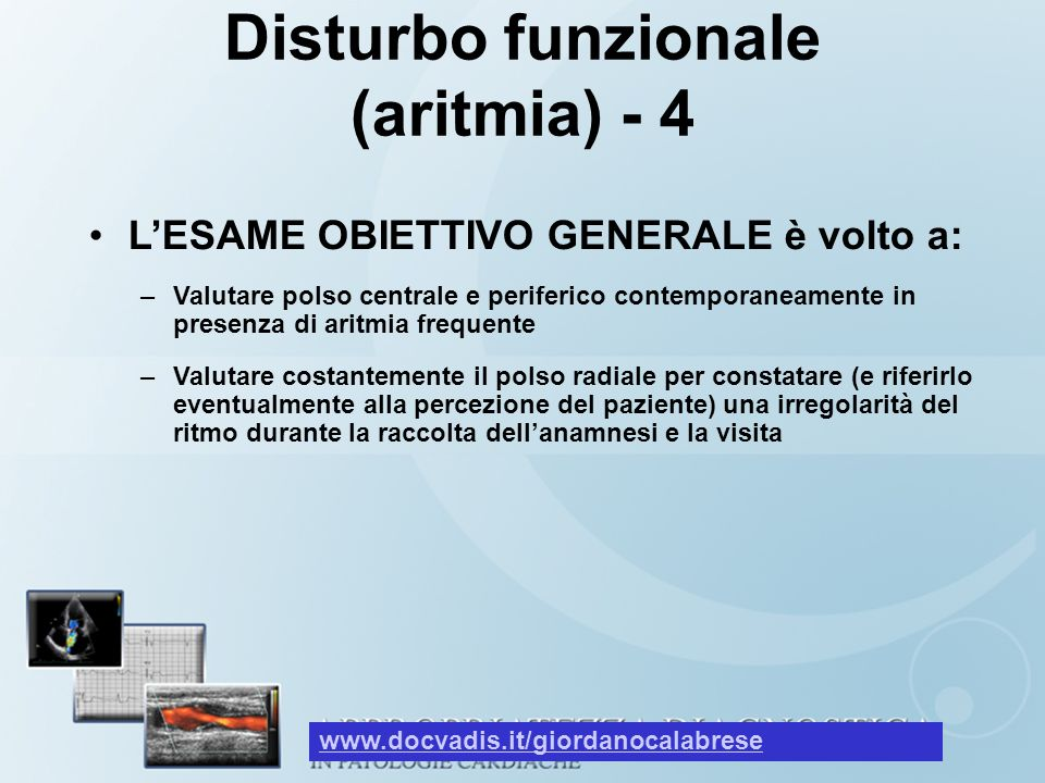 Disturbo funzionale (aritmia) - 4