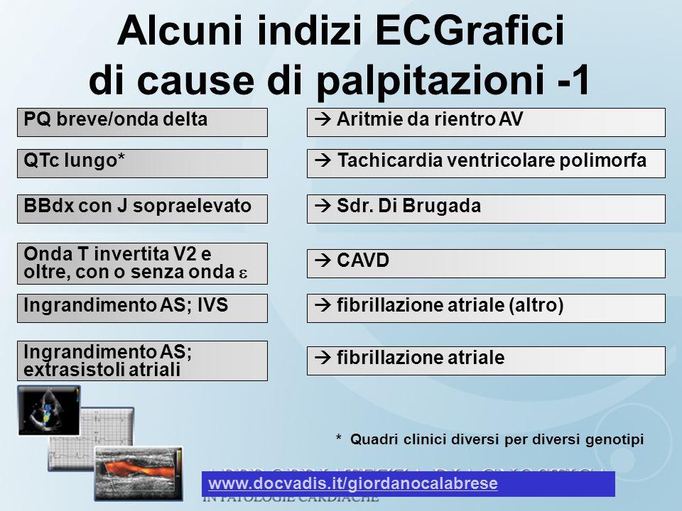 Alcuni indizi ECGrafici di cause di palpitazioni -1