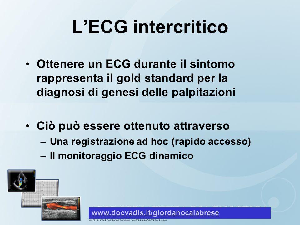 L'ECG intercritico Ottenere un ECG durante il sintomo rappresenta il gold standard per la diagnosi di genesi delle palpitazioni.