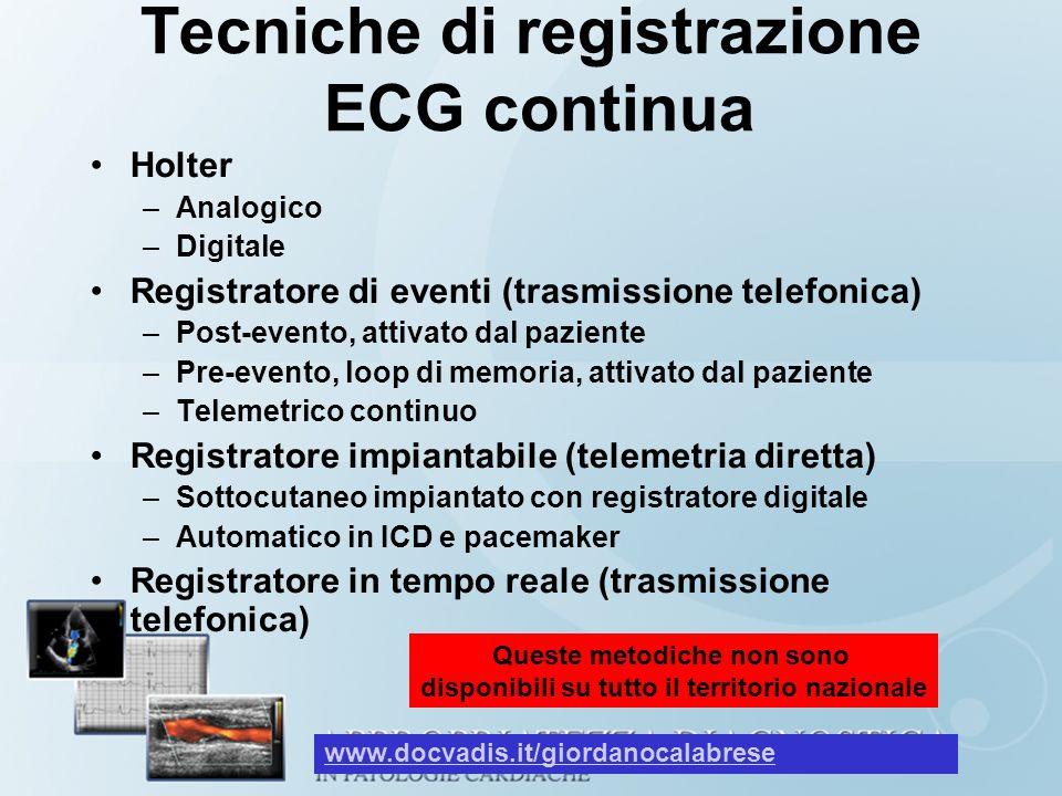 Tecniche di registrazione ECG continua